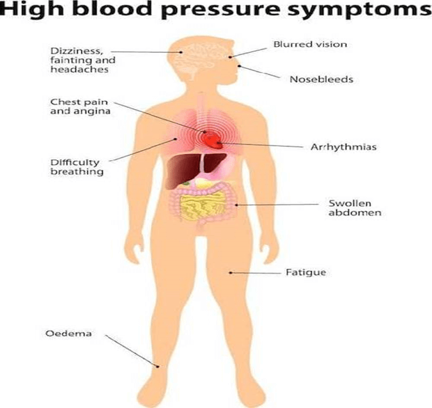 10 Tips To Prevent Hypertension